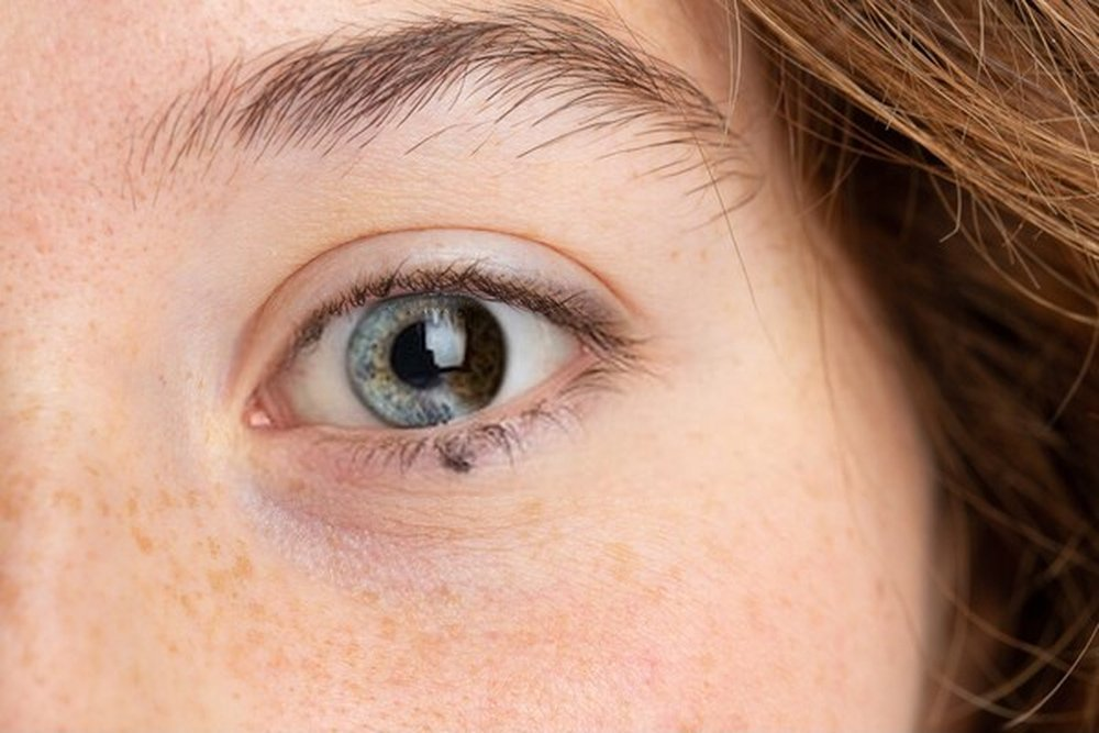 cores de olhos mais bonitas e mais raras